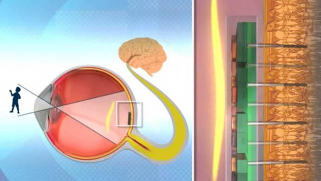 6 millones de ciegos podrían volver a ver gracias a un chip israelí