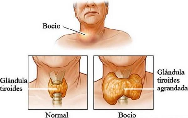 Que es la tiroides y en que afecta