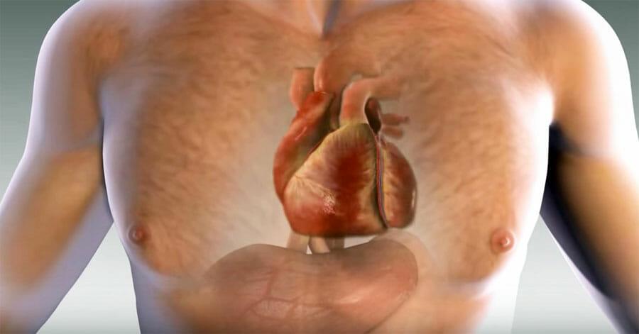 Un infarto te avisa un mes antes