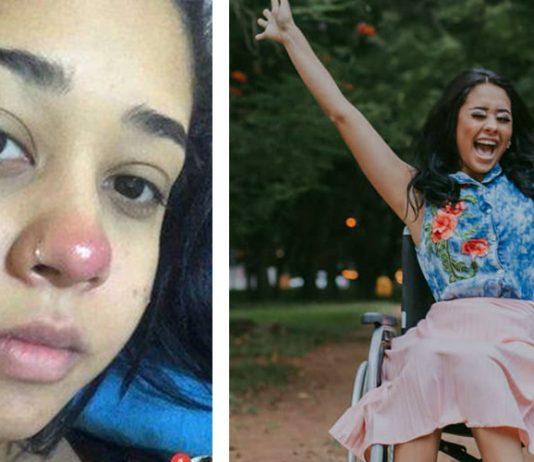Jove de 21 años quedó en silla de ruedas de por vida tras colocarse un piercing en la nariz