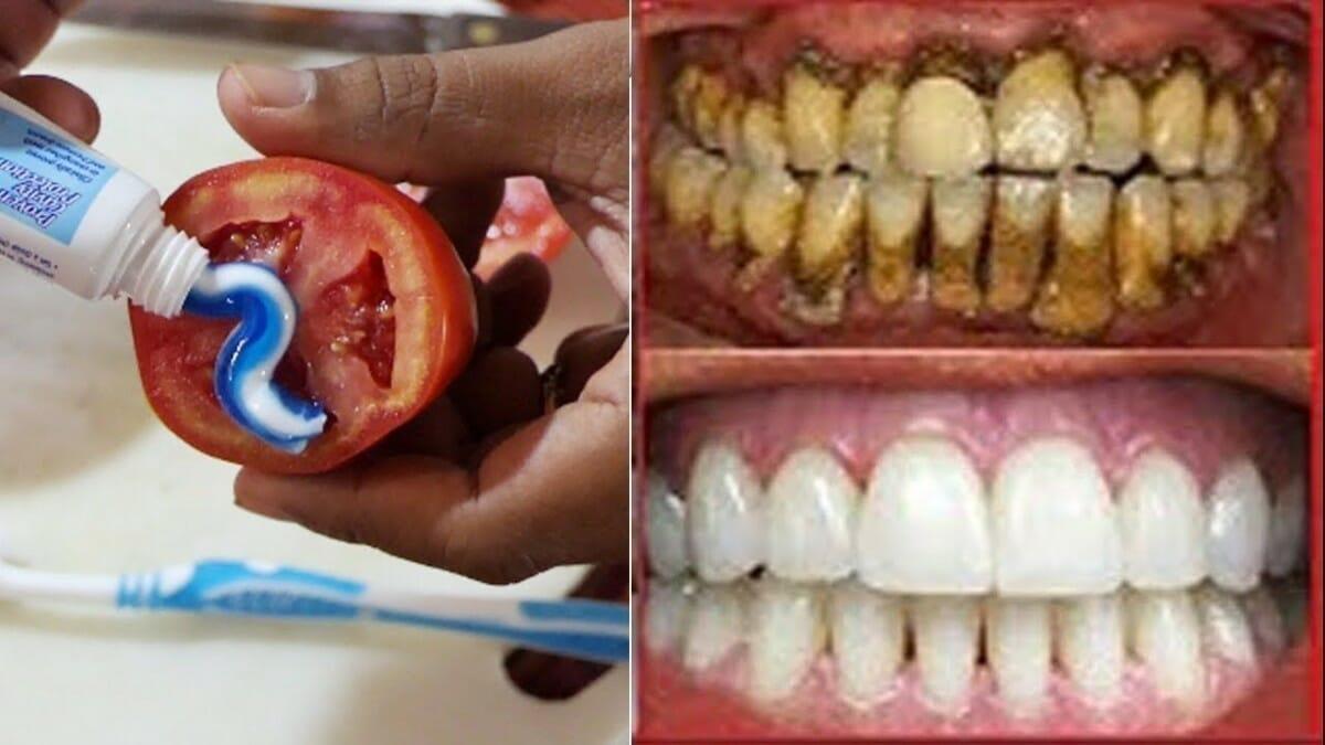 limpiar tus dientes