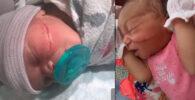 bebe recien nacido recibió herida en el rostro